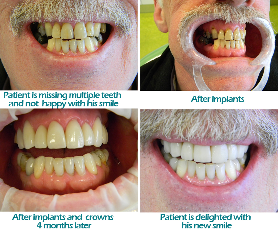 dental implants galway