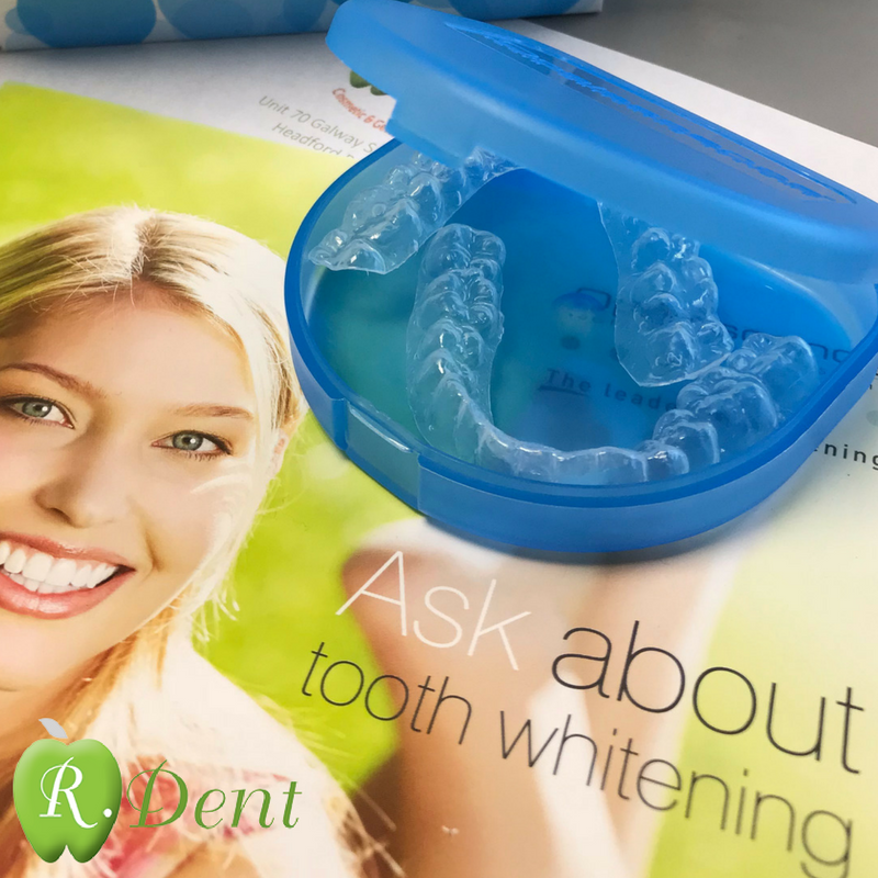 Tooth Whitening Treatments at Rdent Galway