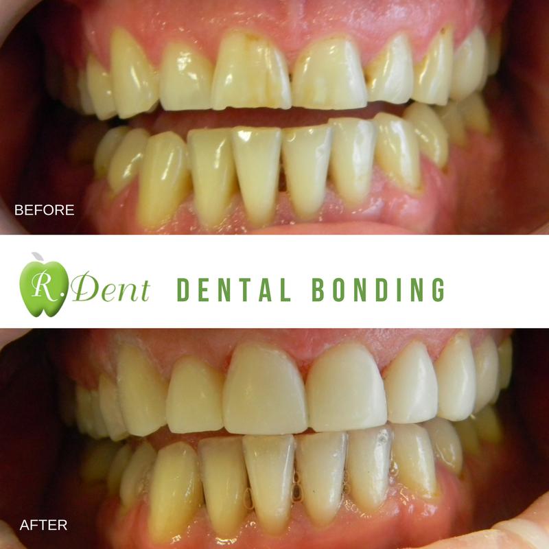 RDENT Dental Bonding