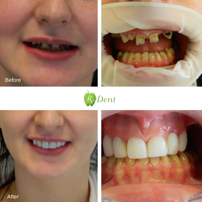 Transformation Thursday – Composite Veneers